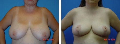 Breast Reduction Case Number: 104