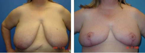 Breast Reduction Case Number: 108