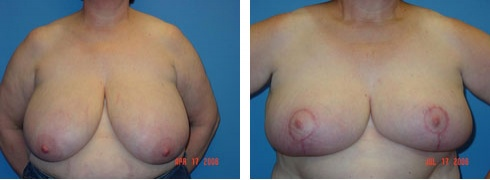 Breast Reduction Case Number: 110