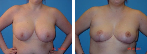 Breast Reduction Case Number: 111