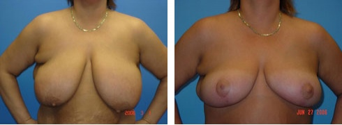 Breast Reduction Case Number: 112