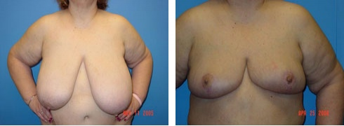 Breast Reduction Case Number: 113