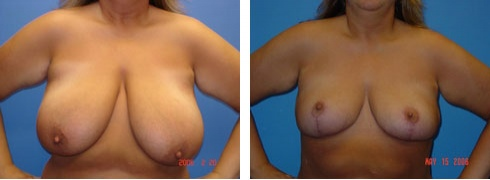 Breast Reduction Case Number: 115