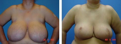 Breast Reduction Case Number: 116