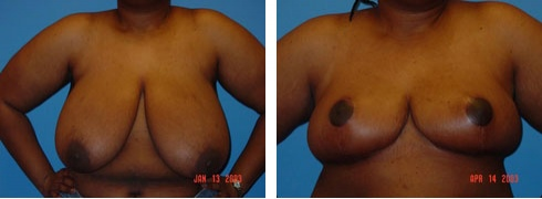 Breast Reduction Case Number: 166