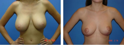 Breast Reduction Case Number: 168