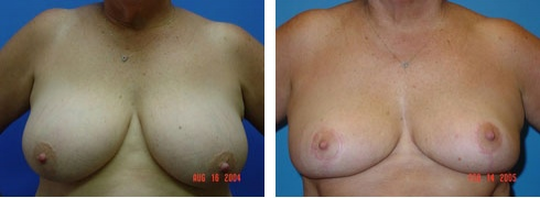 Breast Reduction Case Number: 169