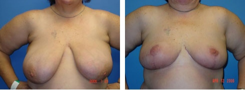 Breast Reduction Case Number: 171