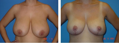 Breast Reduction Case Number: 172