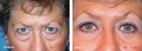 Eyelid Surgery Case Number: 27