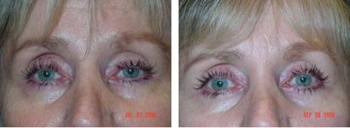 Eyelid Surgery Case Number: 132