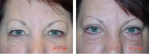 Eyelid Surgery Case Number: 133