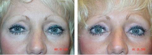 Eyelid Surgery Case Number: 135