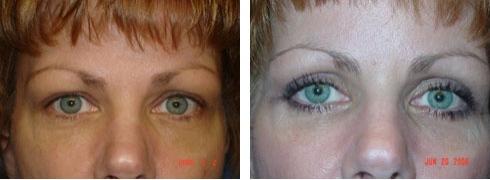 Eyelid Surgery Case Number: 136