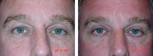 Eyelid Surgery Case Number: 137