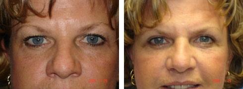 Eyelid Surgery Case Number: 140