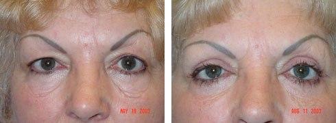 Eyelid Surgery Case Number: 141