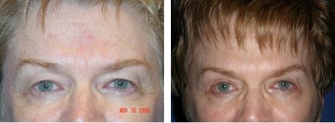 Eyelid Surgery Case Number: 179