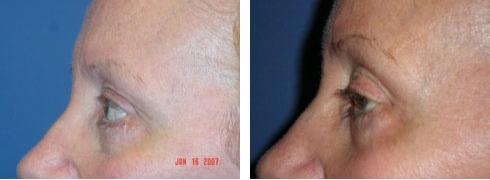 Eyelid Surgery Case Number: 180