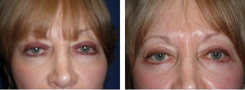 Eyelid Surgery Case Number: 181