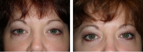Eyelid Surgery Case Number: 217