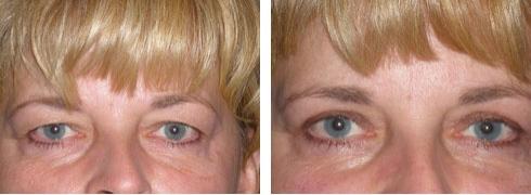 Eyelid Surgery Case Number: 251