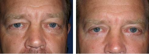 Eyelid Surgery Case Number: 327