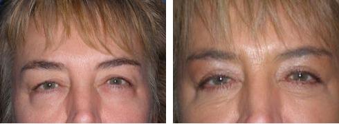 Eyelid Surgery Case Number: 328