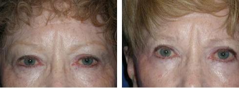 Eyelid Surgery Case Number: 331