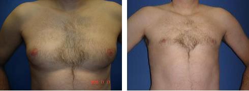 Gynecomastia Case Number: 308