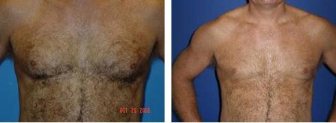 Gynecomastia Case Number: 482