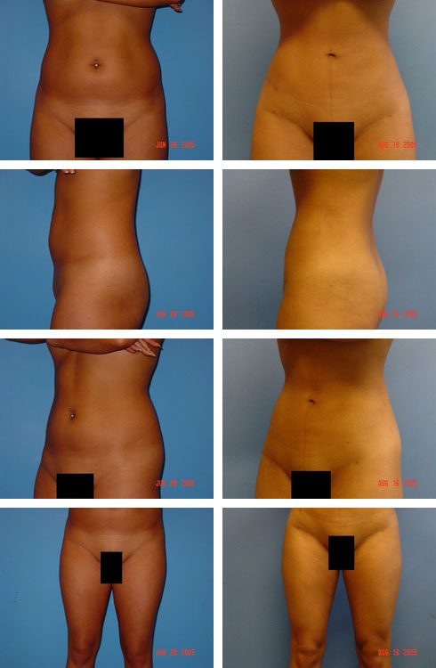 Liposuction Case Number: 151