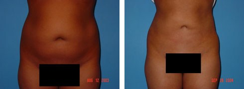 Liposuction Case Number: 155