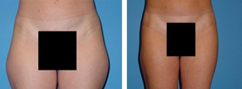 Liposuction Case Number: 157