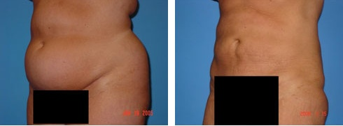 Liposuction Case Number: 159