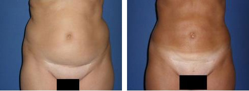 Liposuction Case Number: 316