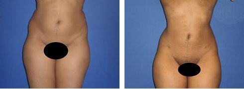 Liposuction Case Number: 488