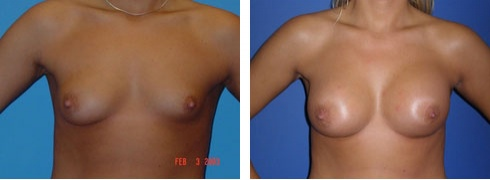 Uneven Breasts Case Number: 197