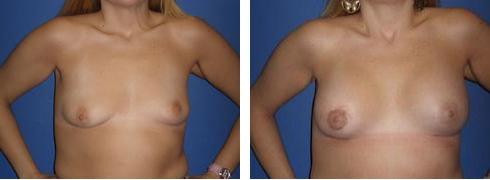 breast-asymmetry-05